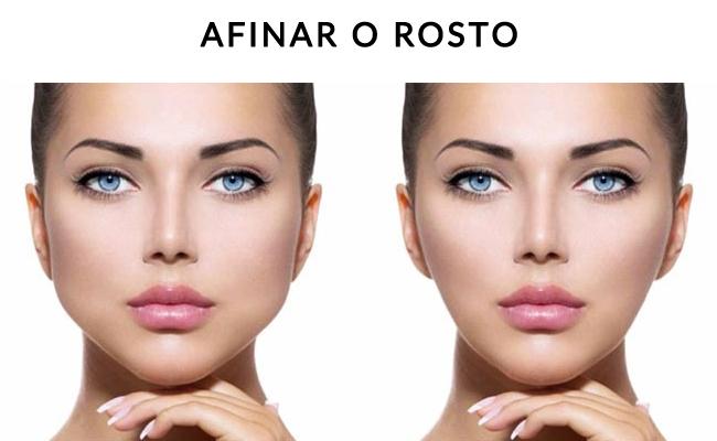 bichectomia-brasilia